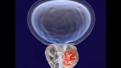 Photo of درمان سرطان پروستات به کمک خانه گزینی سلول های بنیادی مزانشیمی