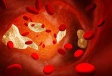 تنظیم کلسترول خون