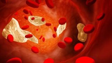 Photo of دیدگاه های جدید در مورد تنظیم کلسترول خون