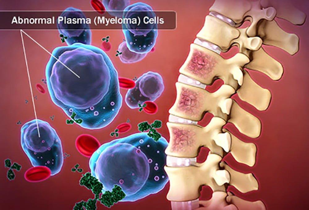 abnormal plasma cell