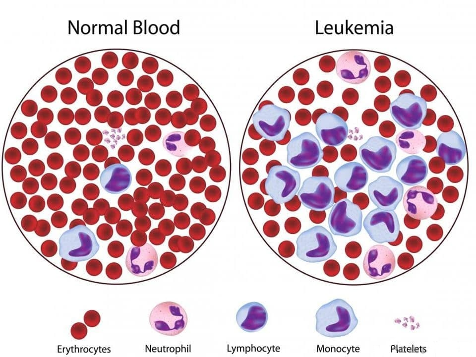 Leukemia in blood