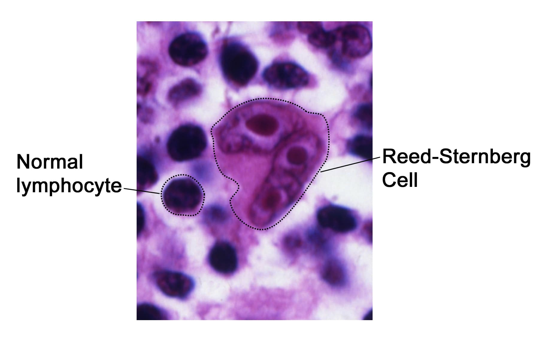 Reed Sternberg lymphocyte