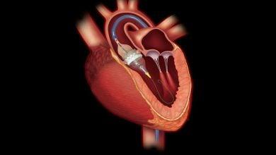 مقابله با بیماریهای قلبی