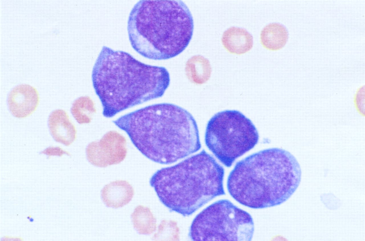 transient leukemia