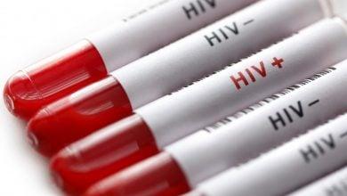 خاصیت ضد HIV
