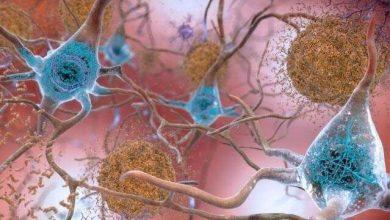 Photo of ترسیم تعامل پروتئین-ژن در بیماری آلزایمر