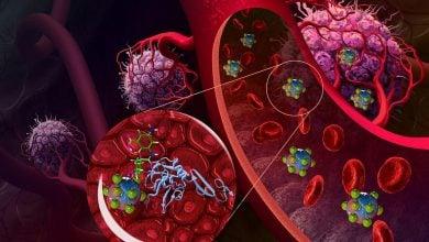 Photo of رویکردی نوین در دارورسانی هوشمند دگزامتازون
