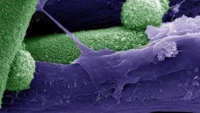 Photo of ترمیم استخوان با استفاده از مدل سلولی زنده سه بعدی
