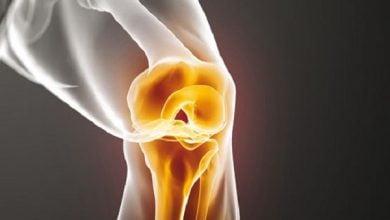 Photo of درمان آرتروز مفصل زانو به کمک سلولهای بنیادی