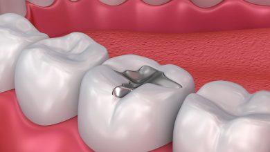 Photo of وقتی خود دندانها کار پر کردن را انجام میدهند!