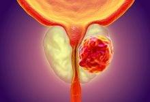 Photo of تشخیص سرطان پروستات با یک روش غیر تهاجمی
