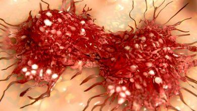 Photo of کشف ساختار یک مولکول دخیل در فرایند بروز سرطان