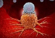 سلول های سرطانی