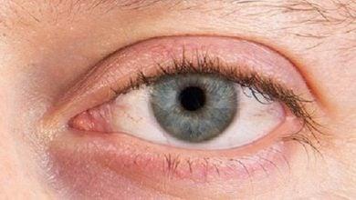 Photo of درمان خشکی چشم با کمک آنتی بادی ها