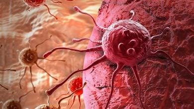 Photo of از بین بردن سلولهای مقاوم سرطان پستان با یک ترکیب دارویی جدید