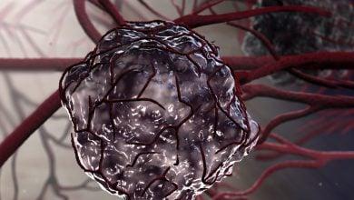 Photo of تحویل هدفمند دوکسوروبیسین به سلول های توموری