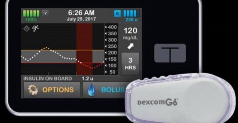 کنترل بهتر سطح قند خون توسط سیستم پانکراس مصنوعی