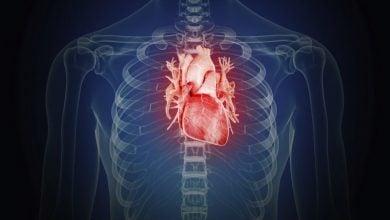 Photo of مدلسازی حملات قلبی با کمک سلول های بنیادی