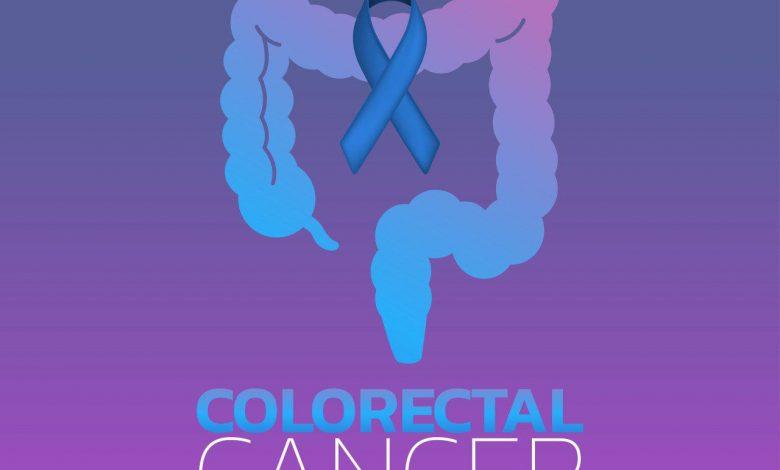 کشف یک پروتئین کلیدی مؤثر در سرطان کولورکتال