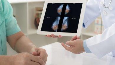 Photo of تشخیص دقیق سرطان پستان به کمک هوش مصنوعی
