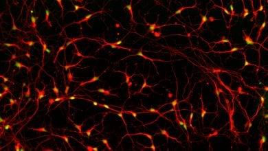 Photo of ترمیم آسیبهای نخاعی با سلولهای بنیادی