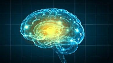 Photo of سببشناسی اختلالات پیشرونده عصبی