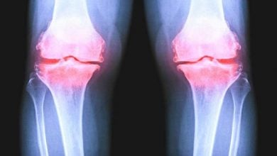 Photo of درمان آرتروز با داروی ترکیبی جدید