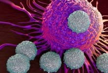 Photo of راهکاری برای مقاومت به درمان در مولتیپل میلوما