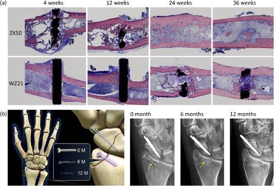 بهکار گیری فناوری ادغام چند مواد بهمنظور استفاده برای تحکیم استخوان در ضایعات استخوانی، کاری است که Putra و همکاران در مقاله مروری خود در قالب گزارشی جامع به تفهیم آن پرداختهاند. آنها از فلزات تیتانیوم، منیزیم و آهن به این منظور استفاده نمودهاند. ضایعات استخوانی در مقیاس بحرانی، به عنوان ضایعهای تعریف میشود که بهطور طبیعی در طول عمر بیمار قابل درمان نیست. در چنین مواردی، لازم است که استخوان تعویض گردد.