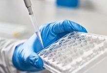 Photo of سه ارزیابی جدید برای آزمایش آنتی ویروس های کووید-19