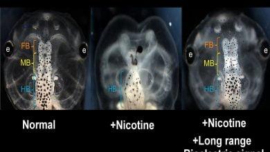 Photo of درمان نقایص جنینی در انسان با رویکردی جدید