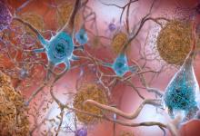 Photo of شناسایی اولیگومرهای کوچک آلزایمر توسط آنتی بادی جدید