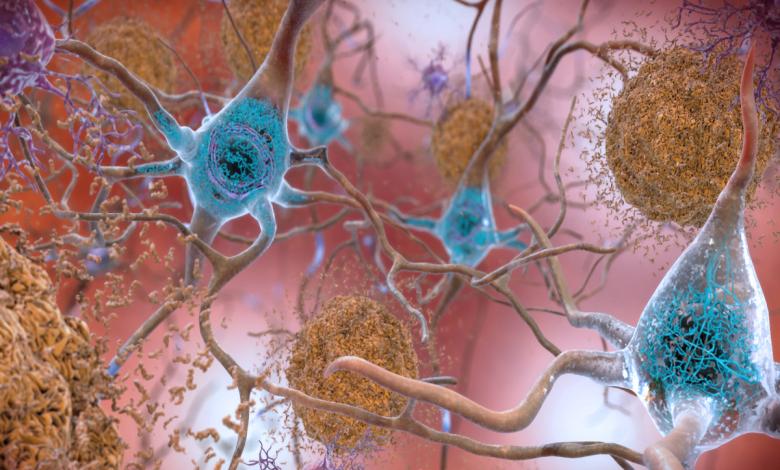 شناسایی اولیگومرهای کوچک آلزایمر توسط آنتی بادی جدید