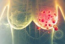 Photo of پیشبینی فواید ایمنیدرمانی در سرطان پستان متاستاتیک