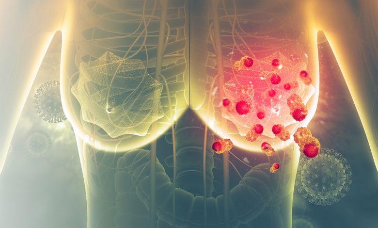 دو بیومارکر جدید یافت شده است که با نتایج بهبود حاصل از ایمنیدرمانی در سرطان پستان متاستاتیک ارتباط دارد.
