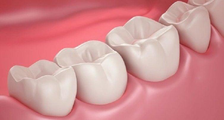 ترمیم طبیعی دندان ها
