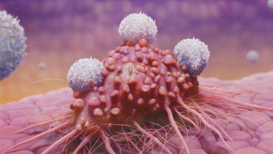 Photo of تشخیص زودهنگام سرطان پانکراس