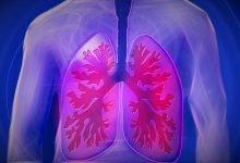 Photo of مدلسازی ریه برای درمان کرونا