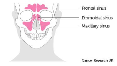 سرطان بینی